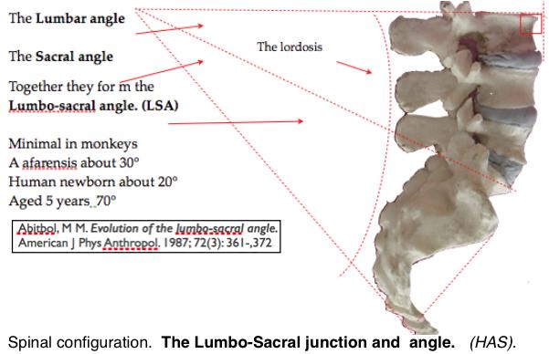 L-sacral angle