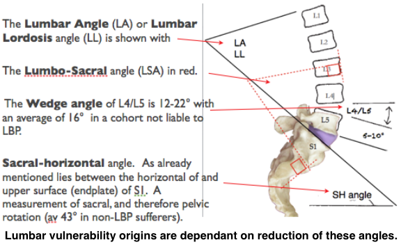 Vulnerability lumbar angles